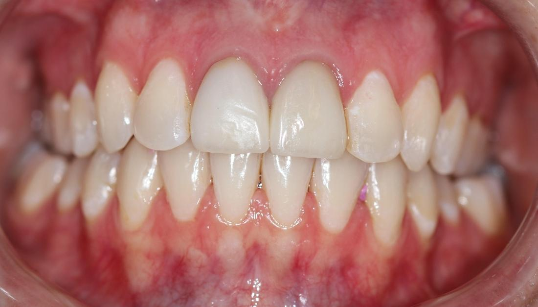 straightened smile after dental treatment l goffstown dental