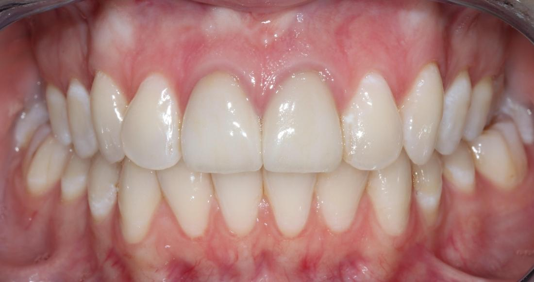 overbite before Invisalign l orthodontist in goffstown